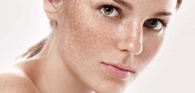 -لعلاج-النمش-في-الوجه-طبيعياً.jpg